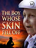 The Boy Whose Skin Fell Off