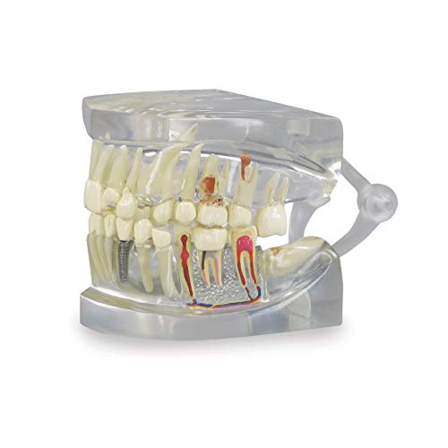 Clear Dental Model   Human Body Anatomy Replica of Jaw w/Teeth for Dentist Office Educational Tool  ...