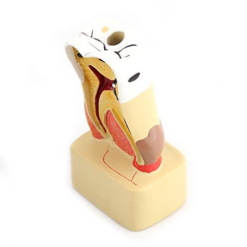Zahnzahnprofilmodell Kariesmodell Pathologische Krankheit Zahnmodell Umfassender Zahnarzt mit Nerv für den Zahnarztunterricht