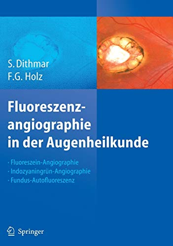 Fluoreszenzangiographie in der Augenheilkunde: Fluoreszein-Angiographie, Indozyaningrün-Angiographie und Fundus-Autofluoreszenz