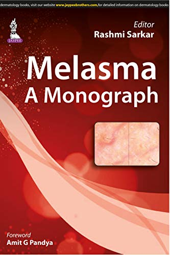 Melasma: A Monograph (English Edition)