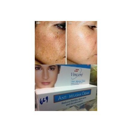 Best Cream Anti Melasma Reduces Dark & Brown Spots, Age Spots, Sun Spots, Pigmentation, Freckles 15 G.