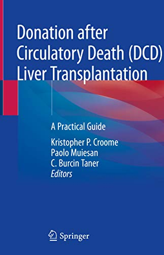 Donation after Circulatory Death (DCD) Liver Transplantation: A Practical Guide (English Edition)