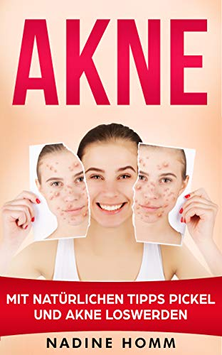 Akne: Mit natürlichen Tipps Pickel und Akne loswerden