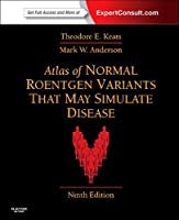 Atlas of Normal Roentgen Variants That May Simulate Disease: Expert Consult - Enhanced Online Features and Print