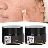 2 piezas de eliminación de marcas de acné, eliminación de espinillas, extractos de plantas de poros retráctiles, crema facial para hombres y mujeres, crema para el acné a base de hierbas