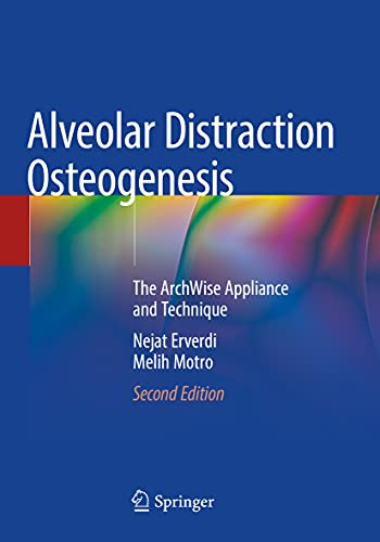 Alveolar Distraction Osteogenesis: The ArchWise Appliance and Technique