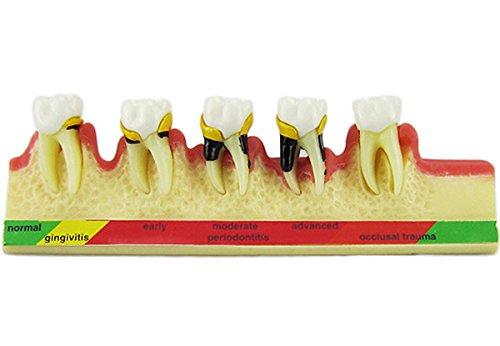 Dental Periodontal Disease assort Tooth Teeth Typodont Study Teaching Model New