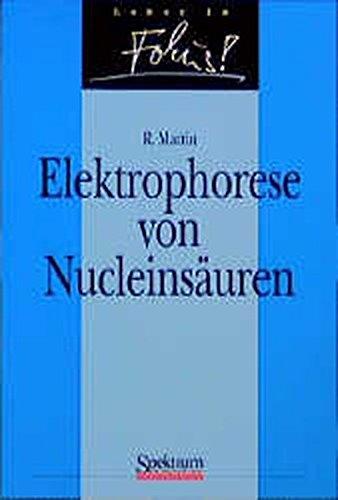Elektrophorese von Nucleinsäuren