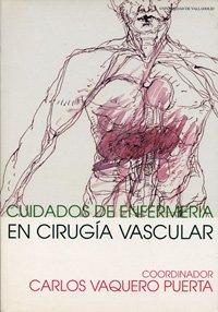 Cuidados de enfermería en cirugía vascular