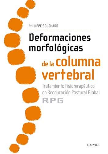 Deformaciones Morfológicas De La Columna Vertebral: Tratamiento fisioterapéutico en reeducación postural global RPG