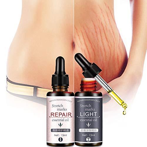 Transer Suppression de la cicatrice Vergetures Huile Essentielle Fat Striae Traitement Gravidarum Vergetures Crème Réparatrice (Noir)