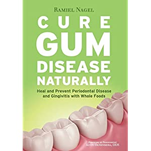 Cure Gum Disease Naturally Eat Whole Foods