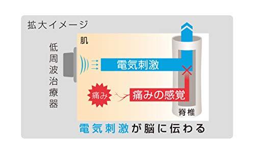 オムロンコードレス低周波治療器HV-F602T