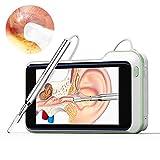 otoscopio - 3,9 mm hp schermo da 5 pollici otoscopio digitale palmare visivo per la pulizia dell'orecchio scope endoscopio otoscopio con fotocamera earpick, per adulti bambini e animali domestici