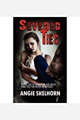 [ Severed Ties ] By Skelhorn, Angie ( Author ) [ 2012 ) [ Paperback ] Paperback