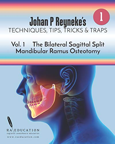 Johan P Reyneke\'s Techniques, Tips, Tricks and Traps: Volume 1: The Bilateral Sagittal Split Mandibular Ramus Osteotomy
