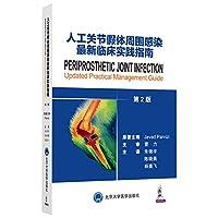 人工关节假体周围感染最新临床实践指南(第2版)