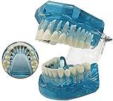 LBYLYH Modelo de enseñanza médica Modelo de enseñanza Dental Plantilla - Plantilla de ortodoncia - Modelo de demostración de Dientes - Modelo de Soporte Lingual