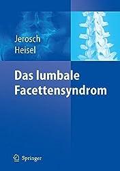 Das lumbale Facettensyndrom