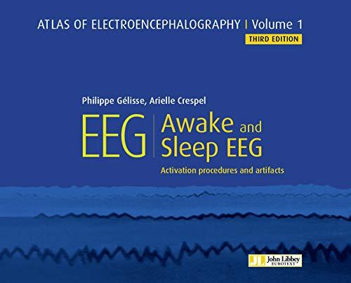 Atlas of electroencephalography : Awake and sleep EEG: Activation procedures and artifacts. (Atlas EEG Book 1) (English Edition)