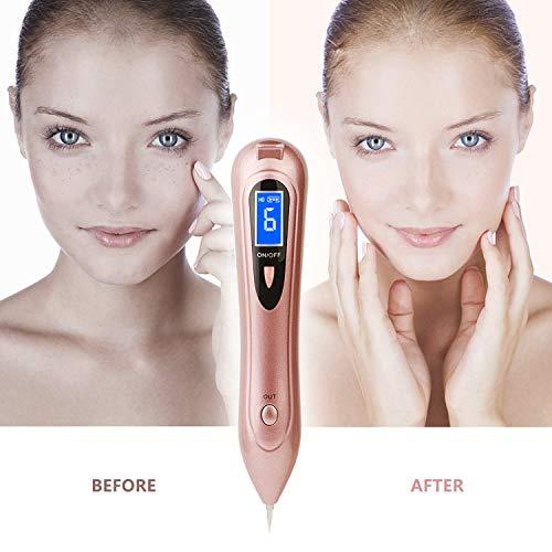 Taupe supprimer stylo 9 niveaux, stylo de beauté professionnel portable USB portable pour le corps taches de rousseur faciales taches de rousseur nevus point dissolvant de tatouage beauté peau rose