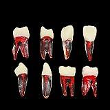 TIIAZHUU Dental Tooth Models Typodont RCT Teeth Root Canal Endodontic Practice Teaching Model (M8007+M8008 Set Total 8pcs)