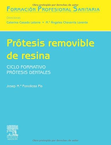 Prótesis removible de resina