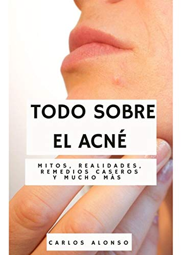 Todo sobre el acné: Mitos, realidades, remedios caseros y mucho más