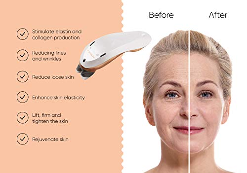 Sensilift - Skin tightening, rejuvenating anti-wrinkle device. The ideal anti-aging machine for face treatments using DRF technology. Can be used over crow's feet, upper lip, chin, and jawline.