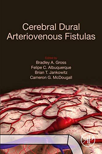 Cerebral Dural Arteriovenous Fistulas (English Edition)