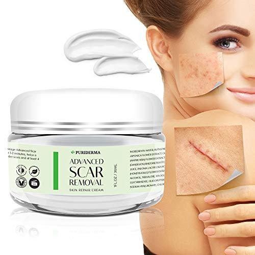 Puriderma Scar Removal Cream Advanced Treatment For Face Body