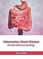 Inflammatory Bowel Disease: Clinical Gastroenterology