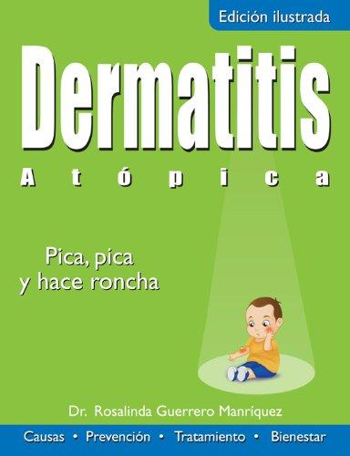 Dermatitis Atópica: Pica, pica, y hace roncha (Colección Salud)