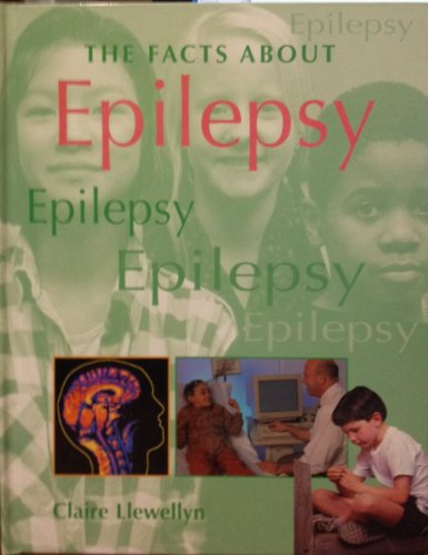The Facts About Epilepsy