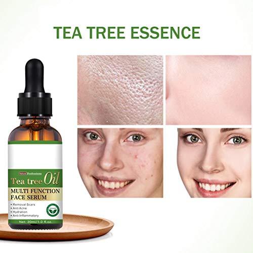 NIVNI Ätherisches Öl, Teebaum Ätherisches Öl Feuchtigkeitsspendendes Öl Kontrolle Teebaumöl gegen Gesichtsfehler Akne