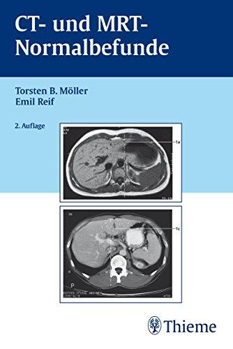 CT und MRT Normalbefunde: . Zus.-Arb.: T. B. Möller, E. R. Reif