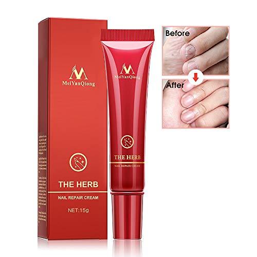Nagelpflege Creme,Nagel Creme Protector,Nagel Behandlung,Pflege für Nägel und Nagelhaut,Pilz behandlung Für Fuß und Hand (15g)