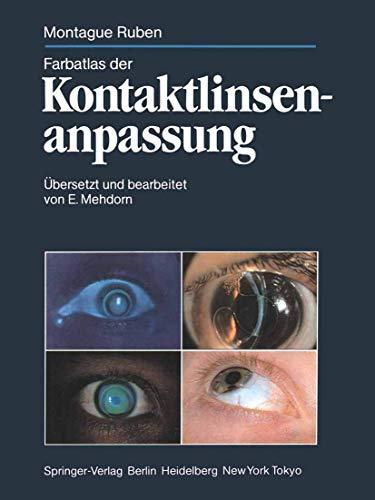 Farbatlas der Kontaktlinsenanpassung