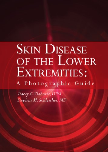 Skin Disease of the Lower Extremities: A Photographic Guide