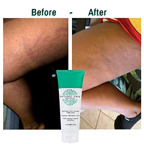 Stretch Mark Cream Removal- Decrease Stretch Marks in 93% of Customers in 2 Months-Helping Scars and Prevention- w/ 100% Organic Cocoa And Shea Butter- Also Stretch Mark Cream For Pregnancy.