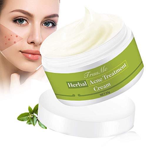 Acne Crema, Anti Acne, Crema Acne, Acne Removal Crema, Crema Viso Acne Extra Forte Naturale - Aiuta a bilanciare l'acqua e l'olio del viso, Rimuovere l'acne per il viso, il collo, e schiena