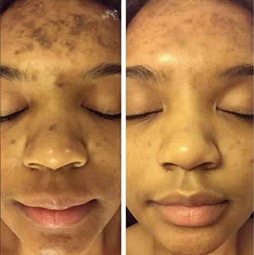 Dark Spot Corrector Remover for Face Melasma Treatment Fade Cream with Kojic Acid Vitamin C, Salicylic Acid, Azelaic Acid, Lactic Acid Peel (1oz)