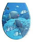 ADOB, Sedile copri WC in Duroplast, modello'Pesci', con chiusura rallentata, removibile per pulizia, 59841