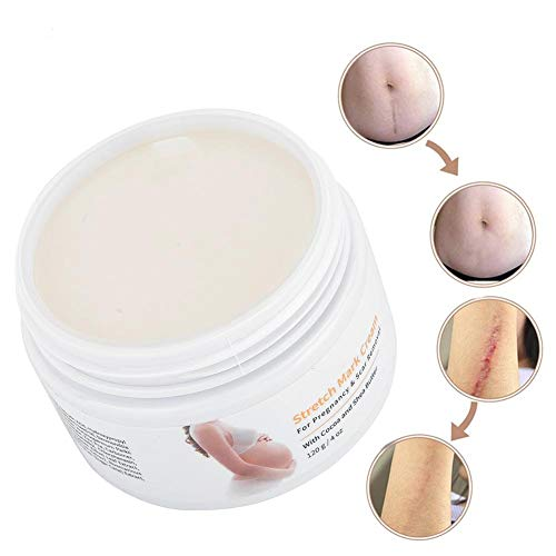 Naroote Schwangerschaftscreme Dehnungsstreifen, Schwangerschaft Mama Repair Parfümfreie Lotion 120g