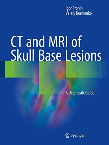 CT and MRI of Skull Base Lesions: A Diagnostic Guide