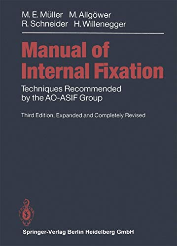 Manual of INTERNAL FIXATION: Techniques Recommended by the AO-ASIF Group