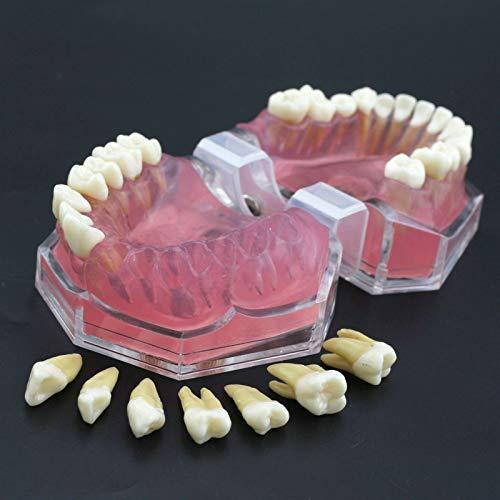 LMEIL Zahnmodell Weiches Zahnfleisch Vollständige Demontage Lernübungen Zahnextraktion Vollständige Demontage Zahnmodell für die Zahnmedizin oder den Zahnarzt zur Kommunikation mit Patienten