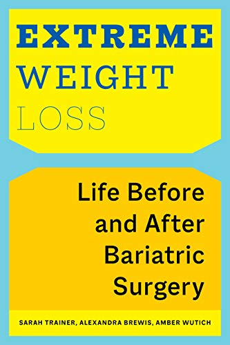 Extreme Weight Loss: Life Before and After Bariatric Surgery