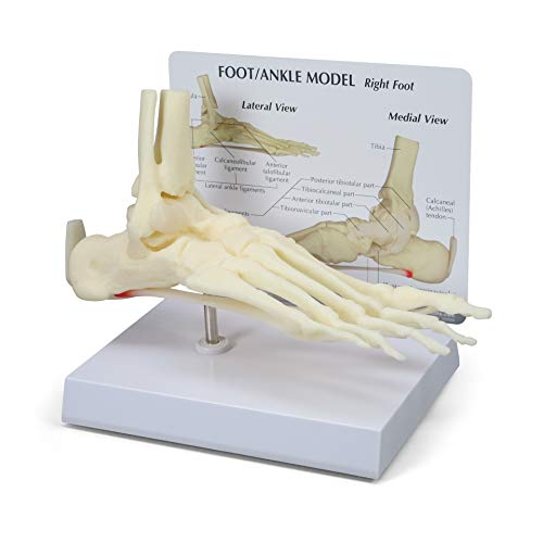 Foot & Ankle Model   Human Body Anatomy Replica of Foot & Ankle w/Plantar Fasciitis for Doctors...